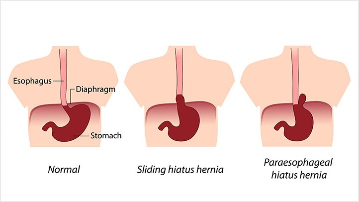 Hiatal Hernia - Ayurvedic Diet & Natural Home Remedies