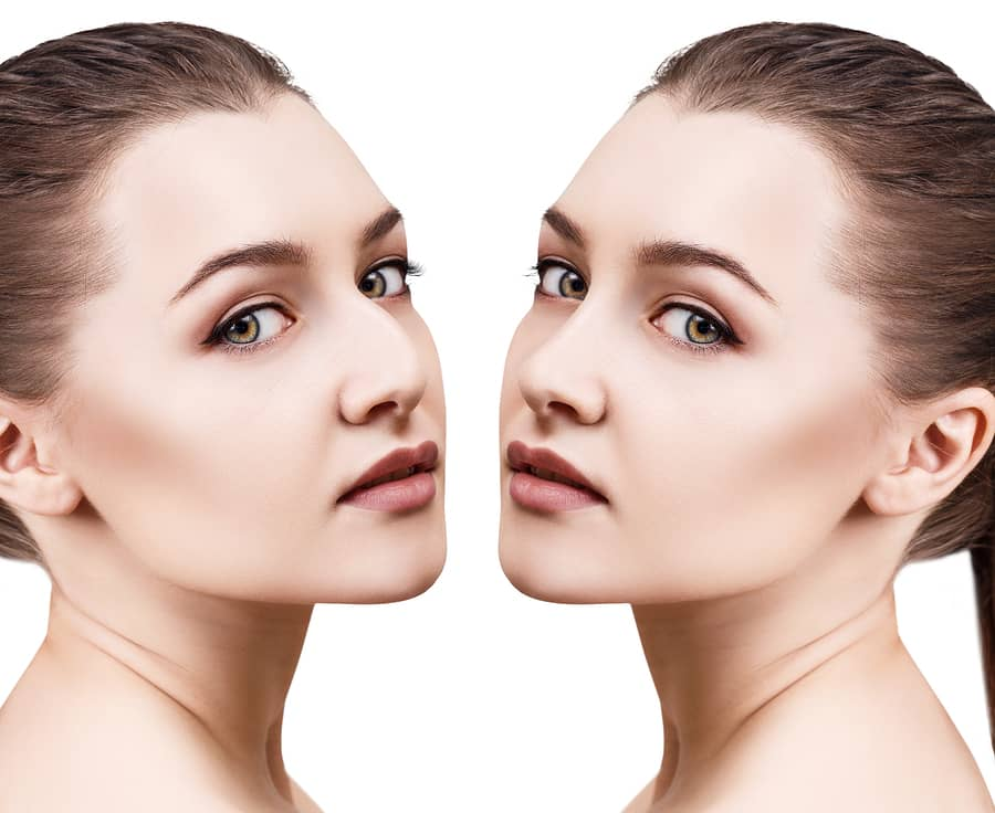 Method To Fix The Nose Raise Without Surgical Treatment Issue