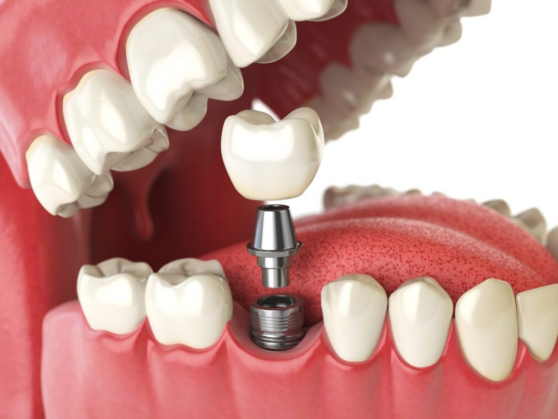 All About All On Dental Implants In Mexico